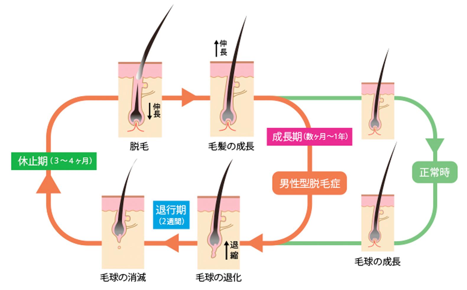 正常なヘアサイクルと、AGAのヘアサイクル