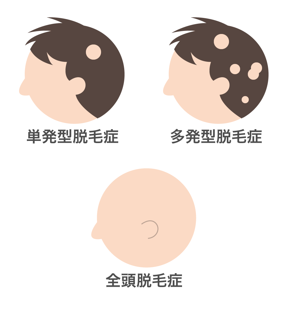 円形脱毛症の分類