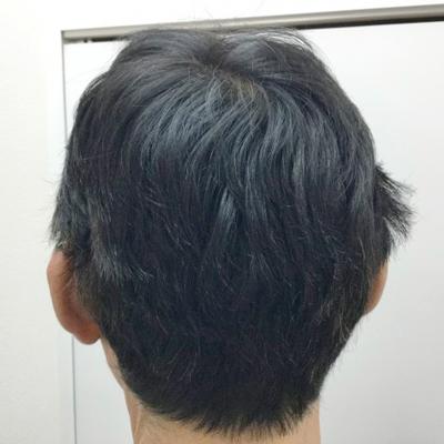 治療後(6ヶ月後)