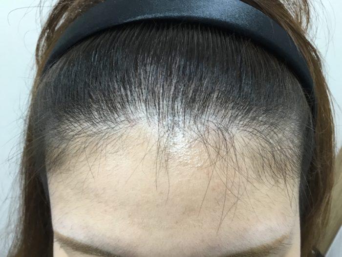 頭 薄い 側 部