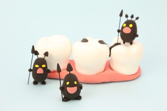 虫歯治療で円形脱毛症が改善する