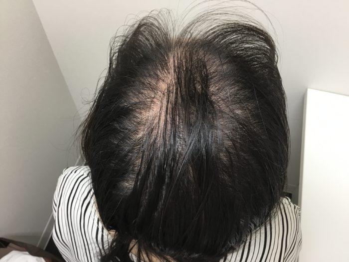 45歳女性治療前