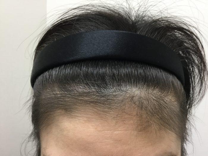 45歳女性治療後