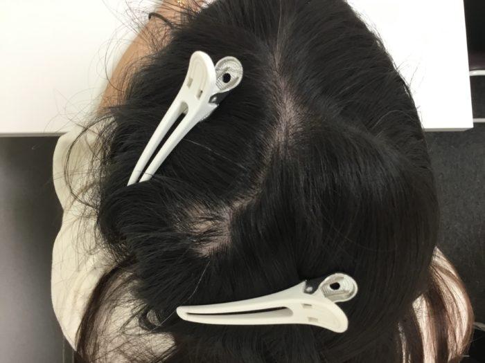 円形型脱毛症 女性型脱毛症3