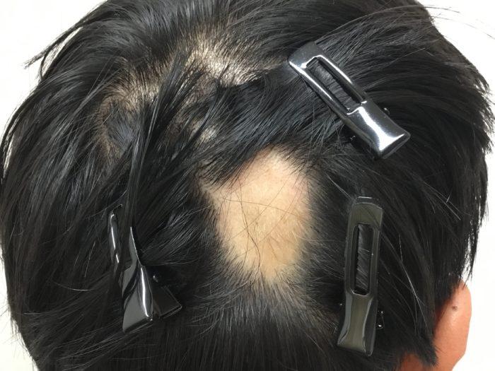 円形脱毛症 単発 治療前