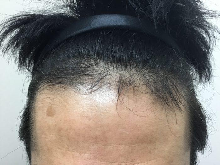42歳AGA治療9カ月2