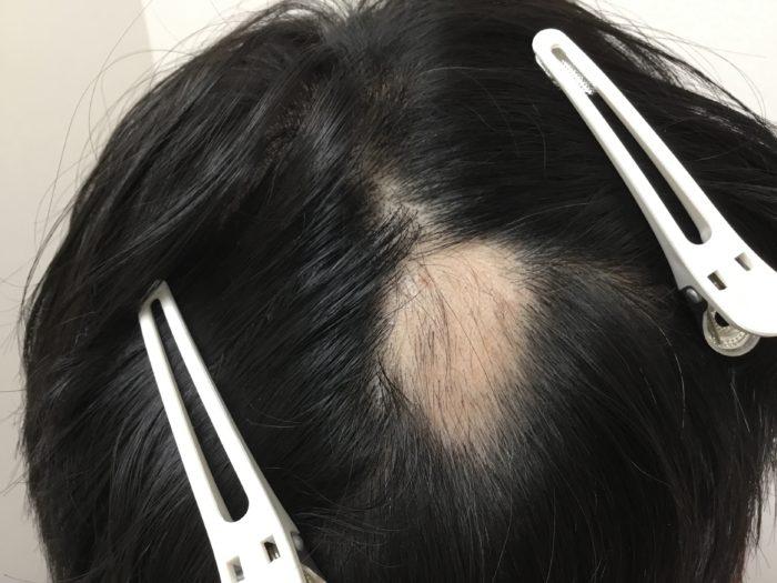 円形脱毛症 単発 治療2カ月後