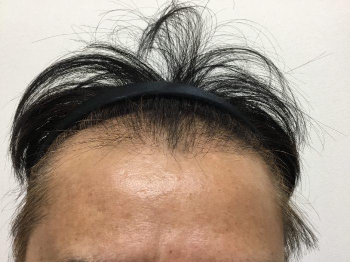 58歳 AGA 治療前