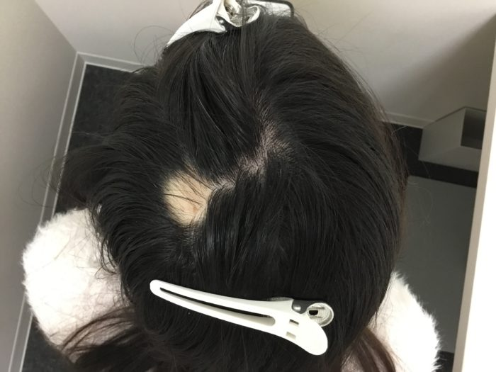 円形型脱毛症 女性型脱毛症