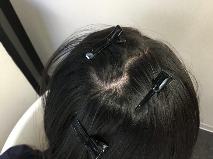 円形型脱毛症 女性型脱毛症4