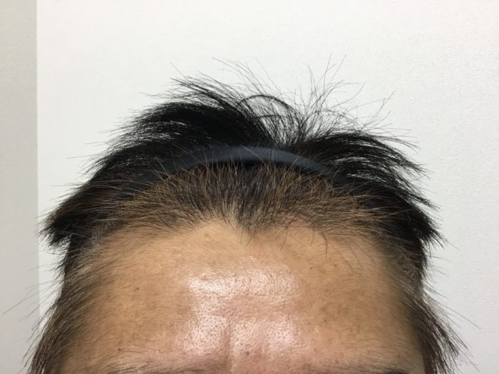 58歳 AGA 治療後