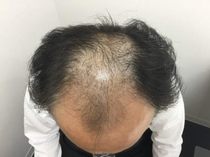 59歳AGA ハミルトンノーウッドⅤ初診時