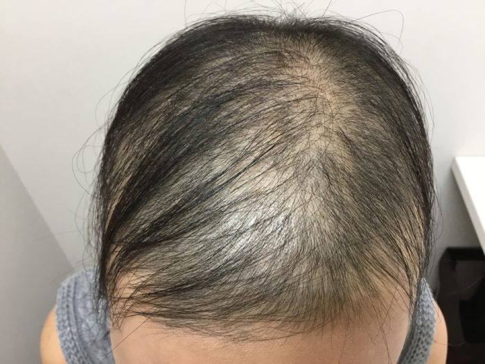 急に発症した円形脱毛症3回