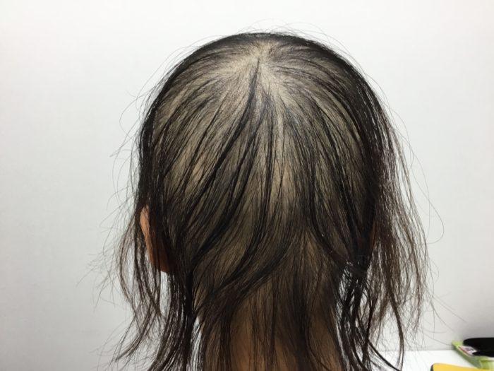 急に発症した円形脱毛症2回目