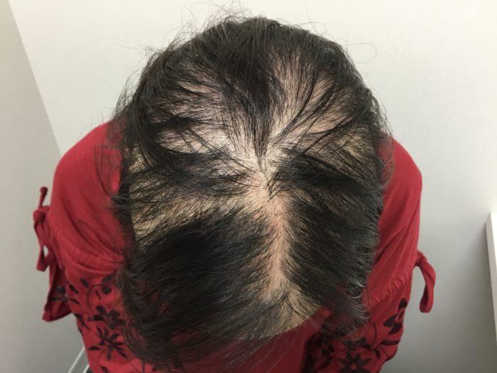 急に発症した円形脱毛症初診時