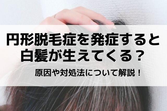 円形脱毛症と白髪