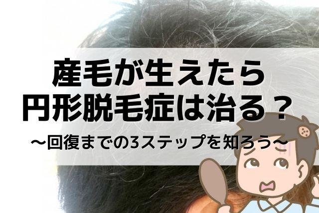 子供 円形 脱毛 症