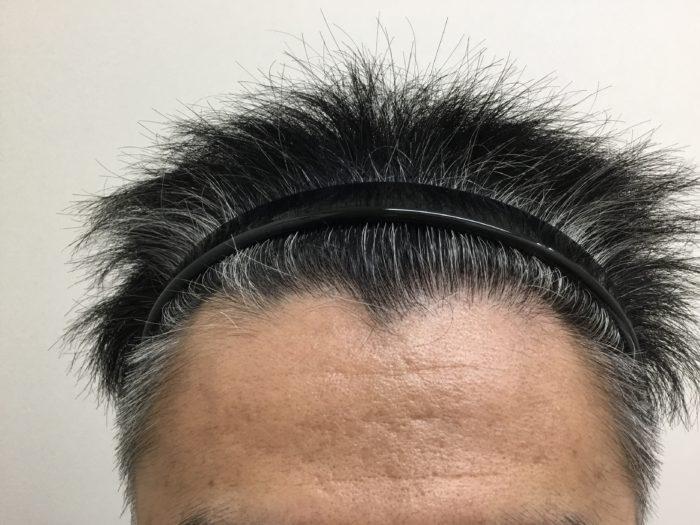 頭頂部AGA