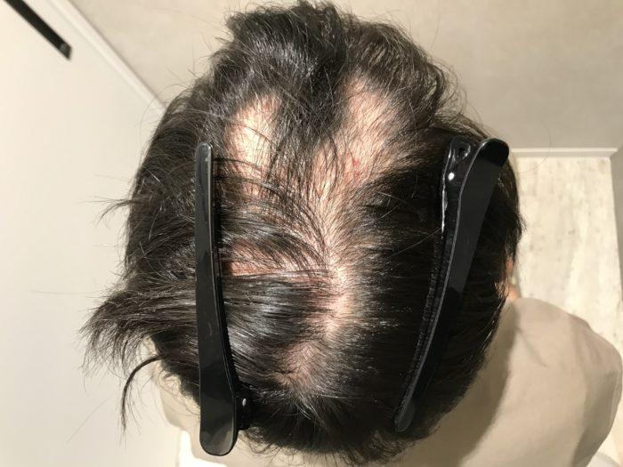 円形脱毛症before