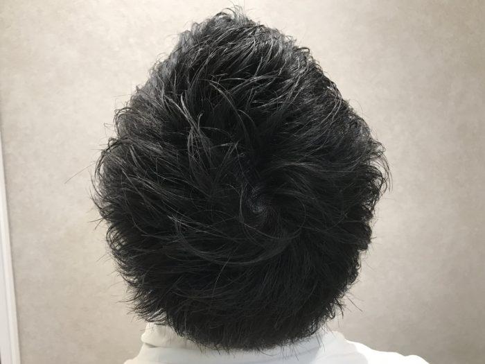 円形脱毛症after